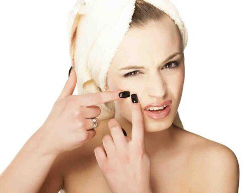 curare l'acne a Milano