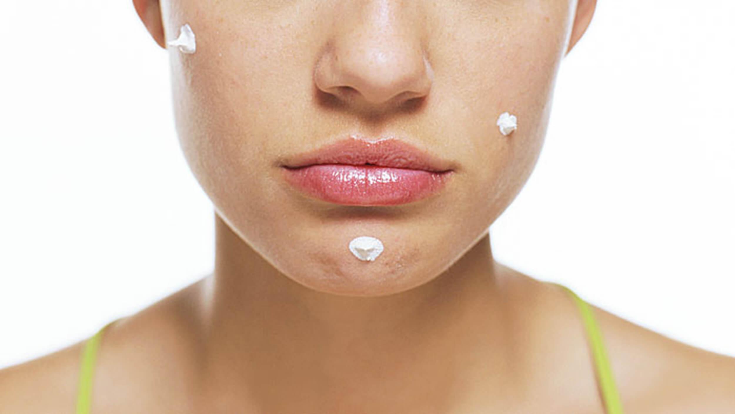 Cura dell'acne senza farmaci con plexr Milano